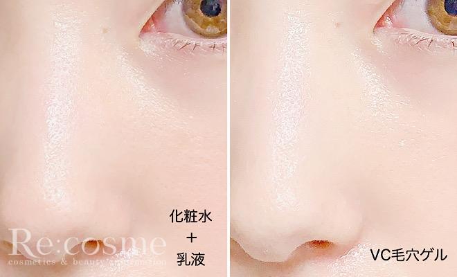 通常の保湿ケアとVC毛穴ゲル使用後の肌を比較